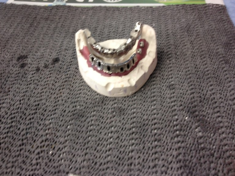 hybrid fixed denture