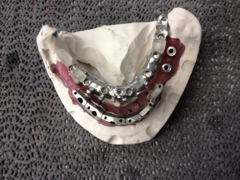 Orthodontic hybrid fixed implant
