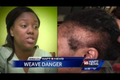 Dangers Of Hair Weave & How It Can Cause Traction Alopeca Which Causes Permanent Hair Loss