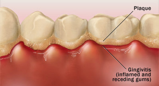 dental-plaque