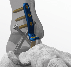 ankle fusion