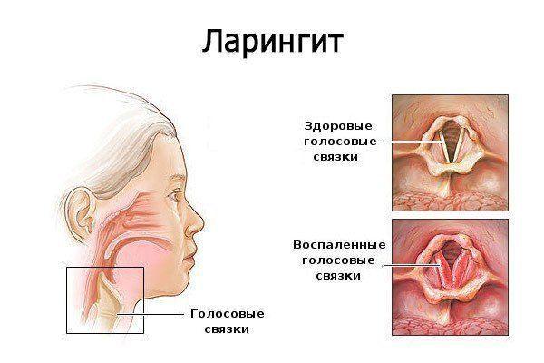 ízületi betegség skót redőben)