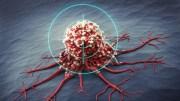 Канбидиол при рак: Може ли да помогне?