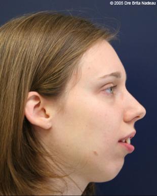 Convex facial profile