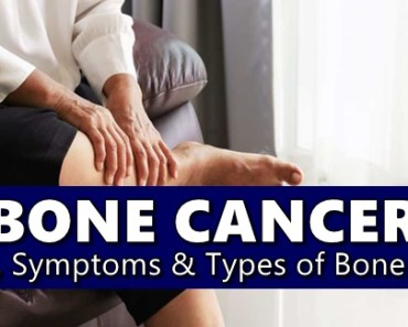 Bone Cancer Causes, Symptoms, Types