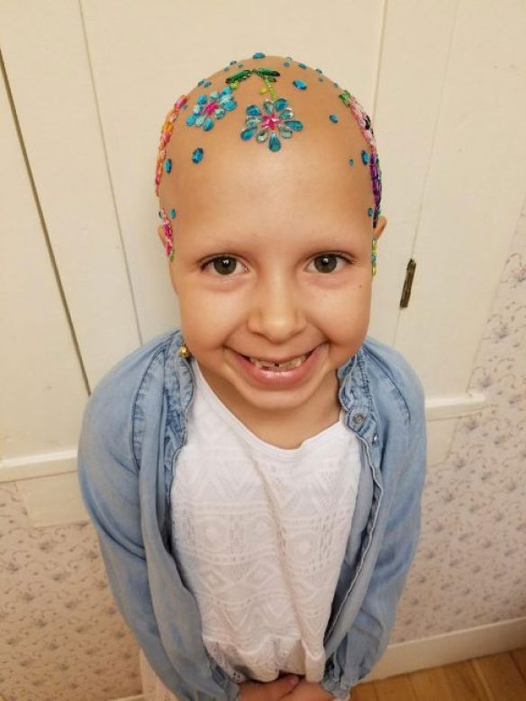 Little Girl With Alopecia Rocks School 'Crazy Hair Day' (5)