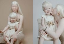 Albino Sisters Born 12 Years Apart Stun The World With Their Extraordinary Beauty