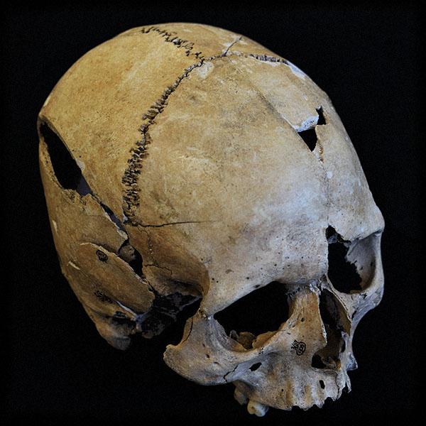 forensic skull