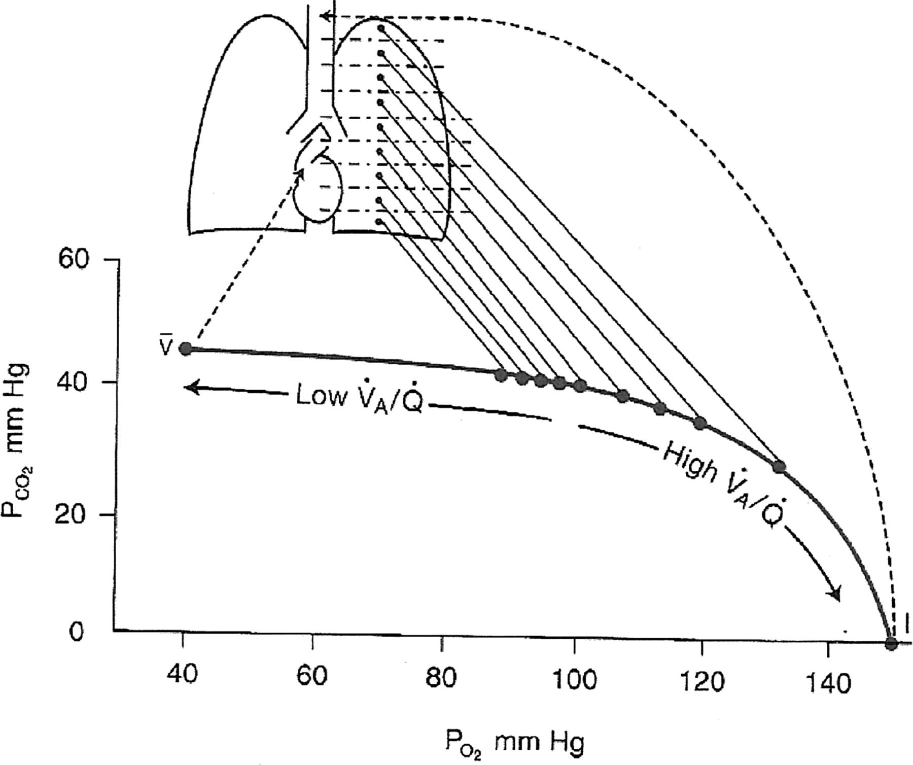 Ventilation-perfusion ratio