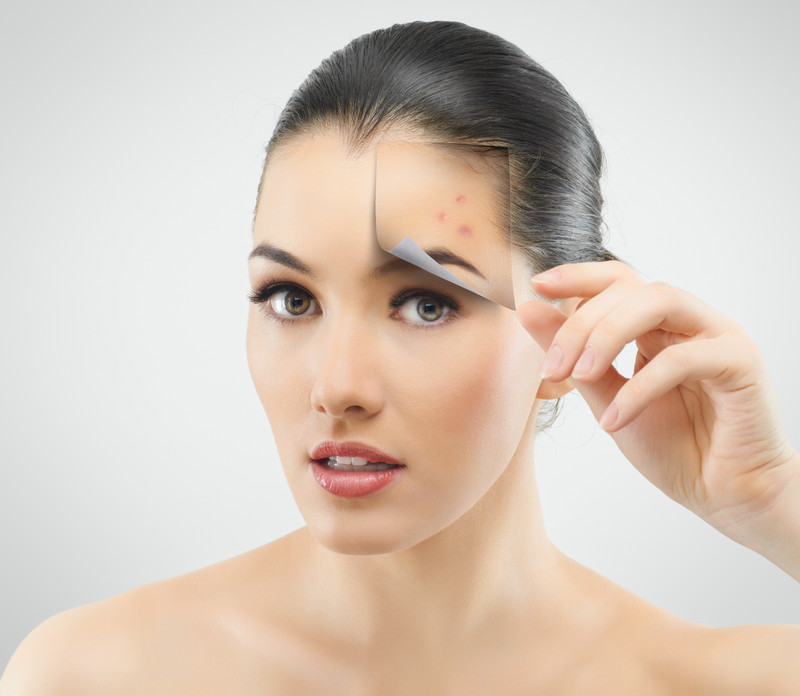 Acne Treatments & Acne Scar Treatment