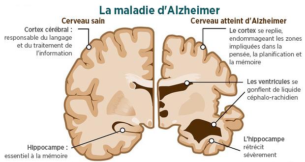 4 Choses à savoir pour ne pas avoir la maladie d'Alzheimer
