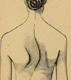scoliosis - correct spinal curvature disorder