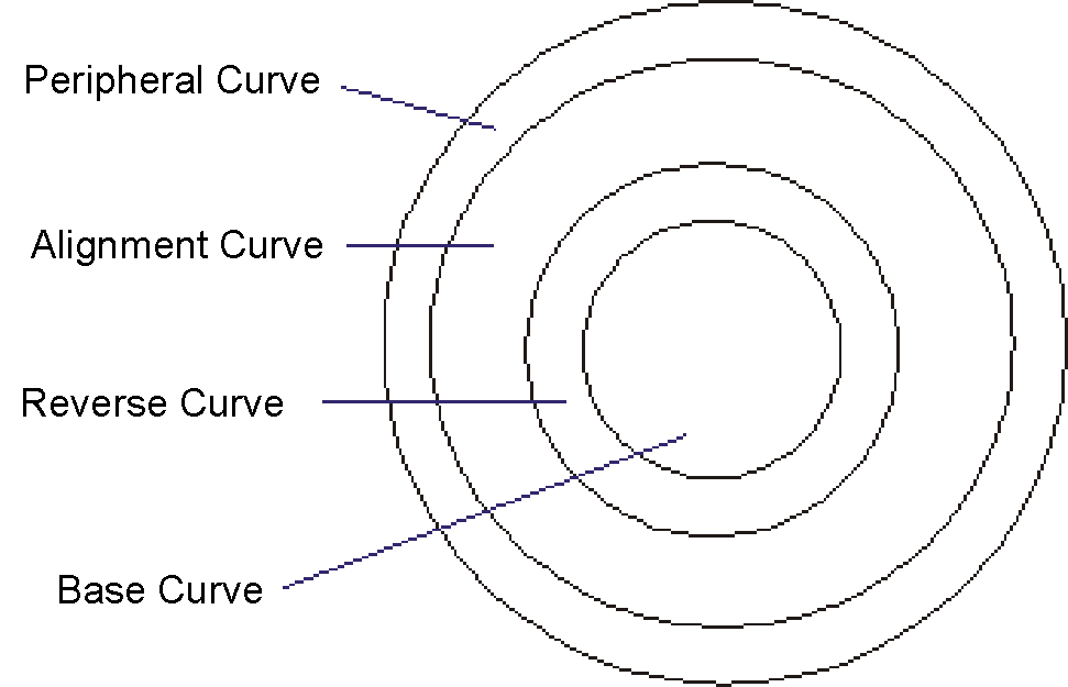 The use of Reverse Geometry Lenses in Modern Contact