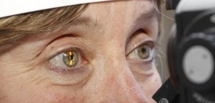 retinopatia diabetica donde atenderse en monterrey