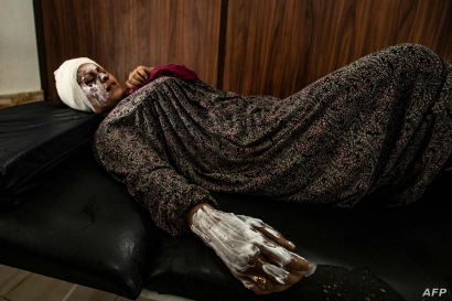 Syrian patient Fatima al-Issa who was hit by shrapnel during Turkish bombardment of Ras al-Ain, rests after receiving treatment…