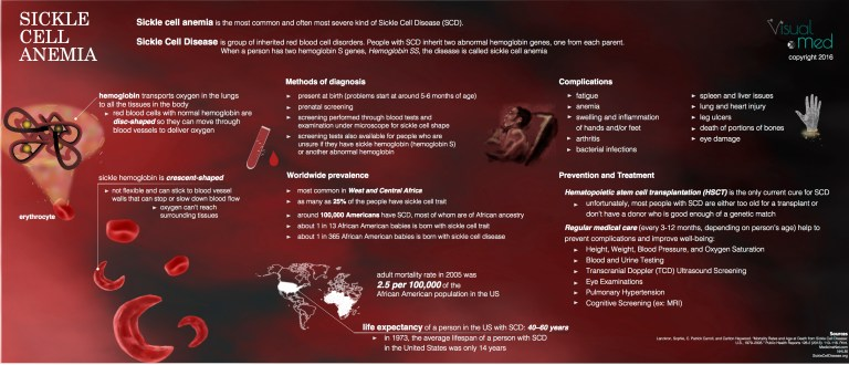 Sickle Cell Anemia – VisualxMed
