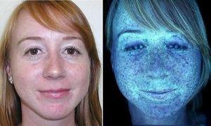 skin-analysis-60_1