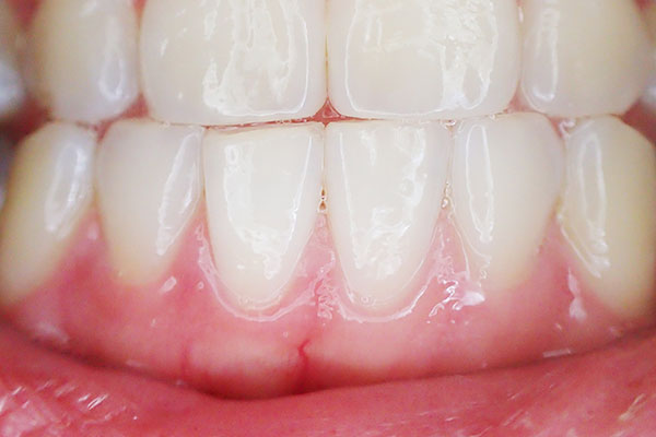 what your dentist wants you to know - bleeding gums