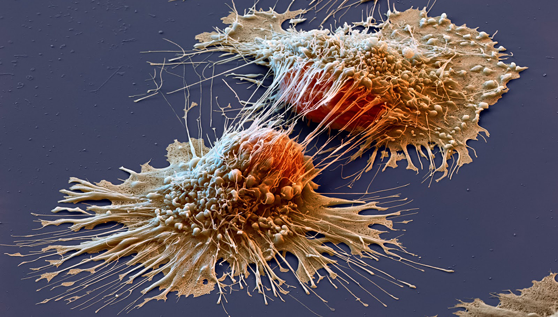 A New Cancer Drug Delivery System Vital Record
