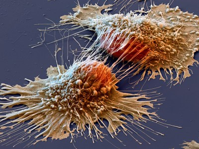 cancer drug delivery system