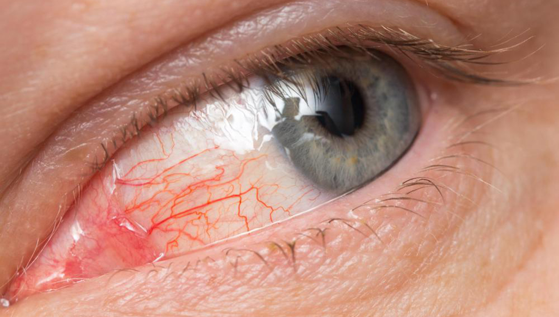 Eye redness is a common symptom of pink eye
