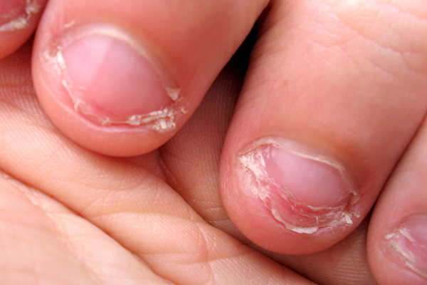 You can spread infection from nail to nail