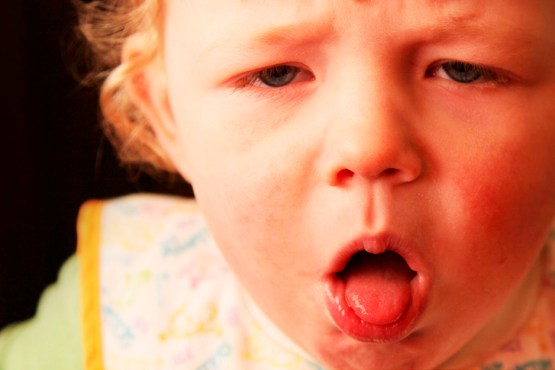 A whooping cough (pertussis) can be more serious than it seems