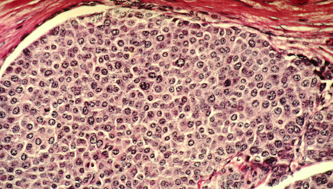 Cancer cells and breast cancer