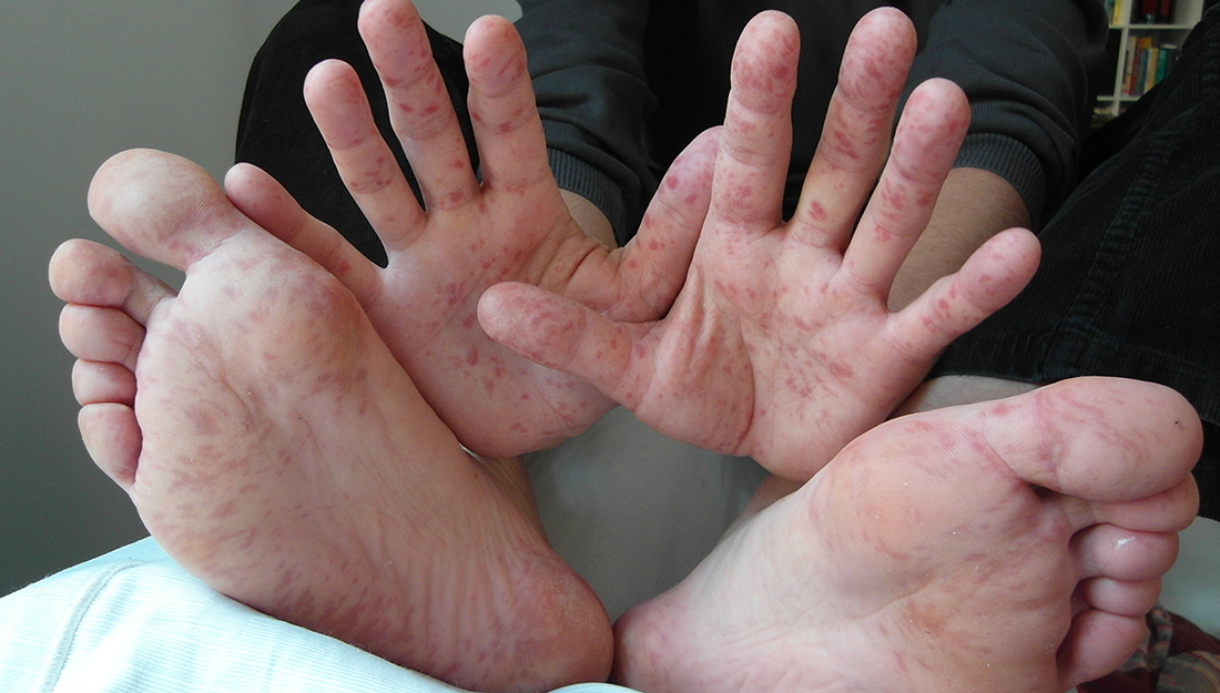 hand, foot and mouth disease