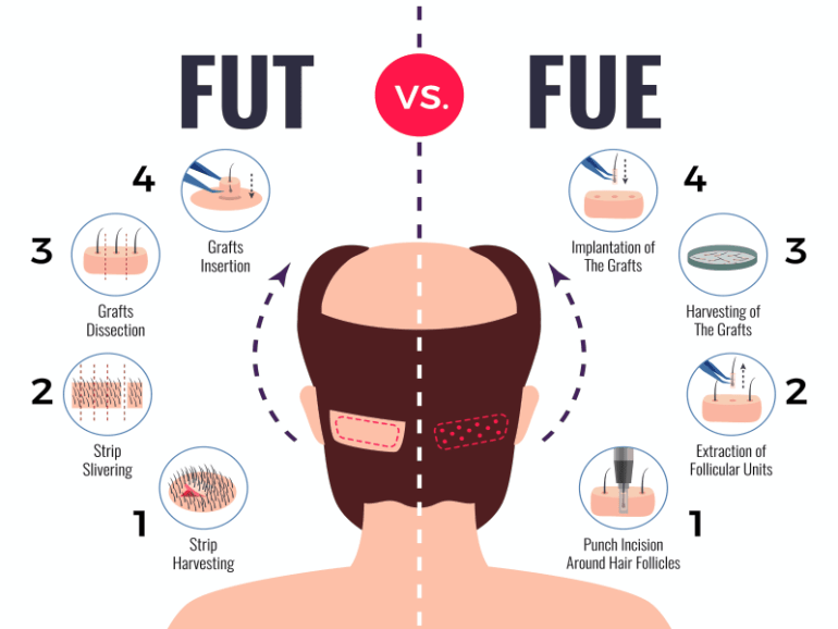 What Is The Best Age For Hair Transplant In Dubai 2