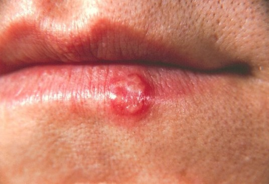 fordyce granules on lips