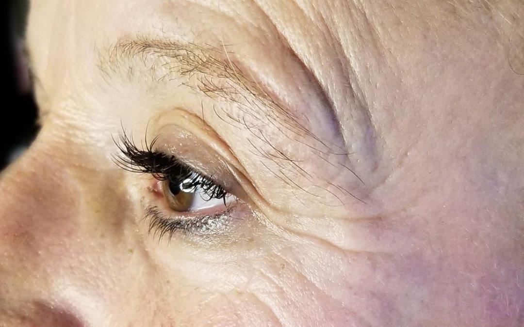 Rughe e perdita di tono: è possibile ringiovanire la pelle?
