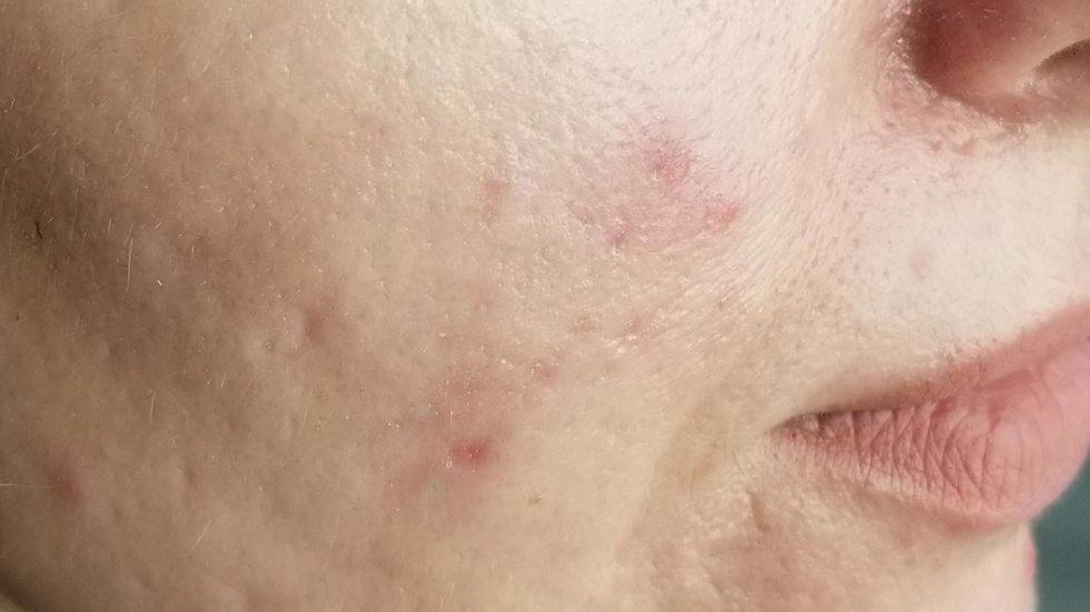 trattamento macchie della pelle e cicatrici