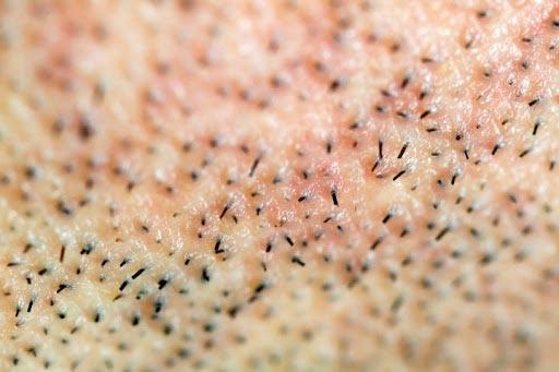il benessere della pelle dell'uomo: prodotti specifici per la pelle maschile