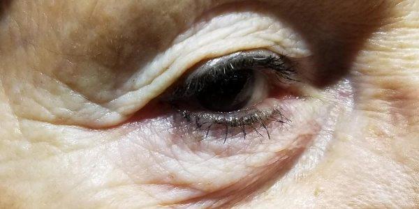 rimedi istantanei per le borse e le occhiaie, contorno occhi, dermocosmesi