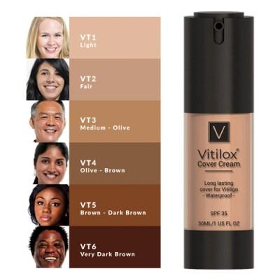How to Spot & Treat Vitiligo on Joint Areas