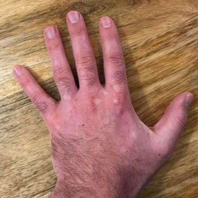 Vitligo Hand Treatment