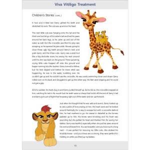 Vitiligo Treatment Information Book