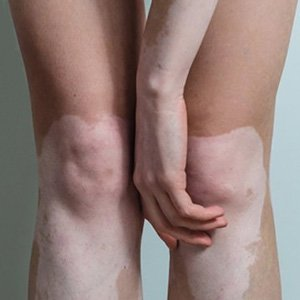 Vitiligo Joint Areas