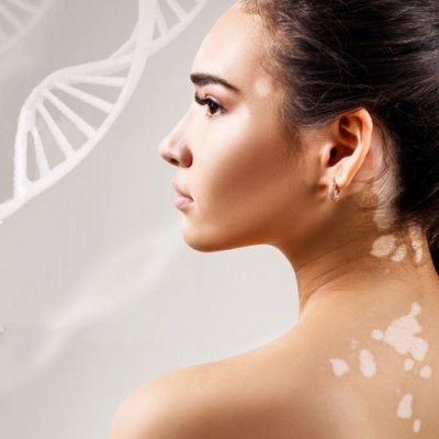 Is Vitiligo Hereditary? Can it be Prevented?