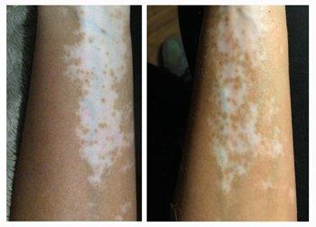 Genetic Vitiligo Case Study