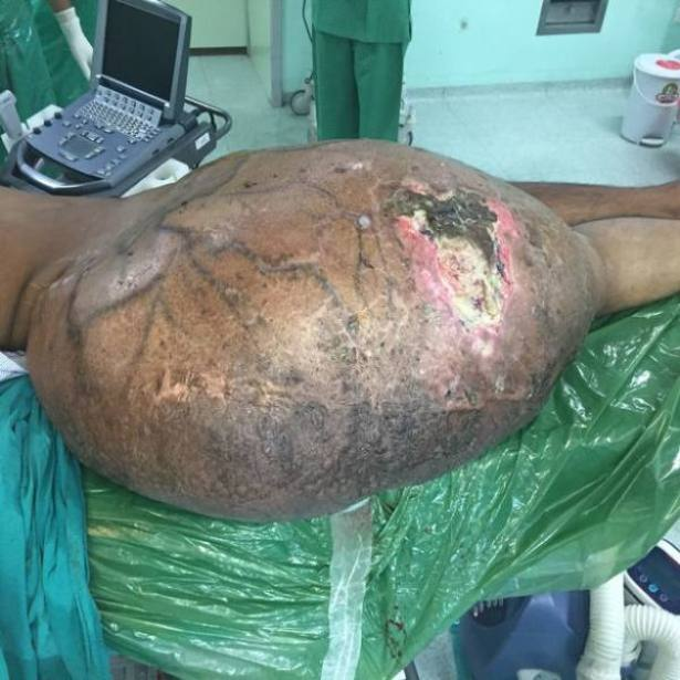 Worlds largest tumour Removed