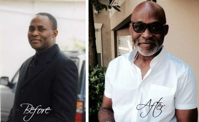 RMD Before and After