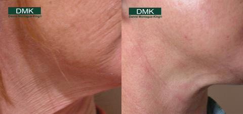 DMK Treatment Before and After