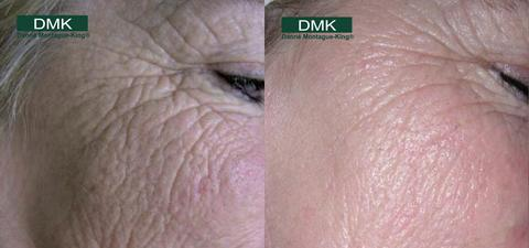 DMK Treatment Age Before and After