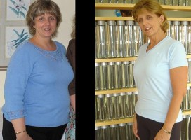 Cavitation Liposuction in Philadelphia PA