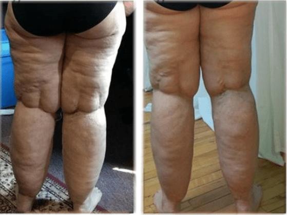 «Au lieu de la liposuccion, j'ai choisi le céto»
