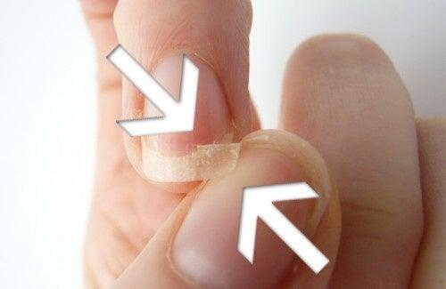 Risultati immagini per unghie fragili