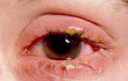 Простуда на веке глаза лечение. Мазь от простуды на глазу