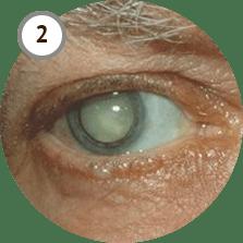 Vizox— восстановление зрения до «единицы» без операции